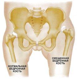 Дисплазия тазобедренного сустава лечение ребенка от 7 лет крем астин для суставов