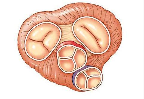 Недостаточность аортального клапана   Лечение в Израиле