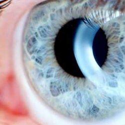 Глаукома закрытоугольная лечение