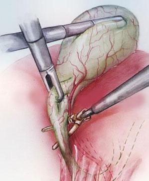 Лапароскопическая холецистэктомия удаление