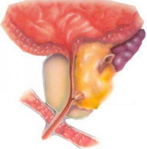 Внутрипузырный рост предстательной железы