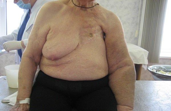 удаление груди фото