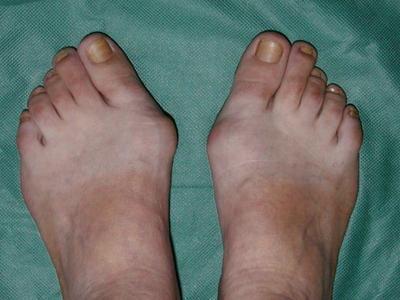 Крем от шишек на больших пальцах ног акулий жир