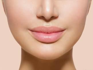 идеальные губы после хейлопластики в Израиле