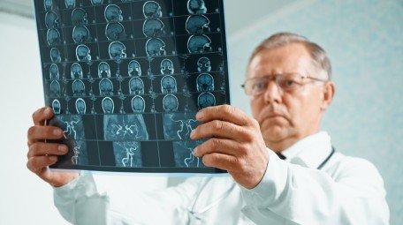 диагностика опухолей головного мозга в Израиле