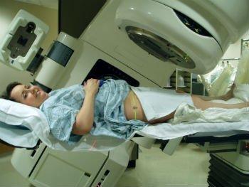 радиотерапия при раке шейки матки в Израиле